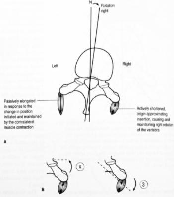 Paravertebraalilihasten spasmi aiheuttaa nikaman paikallisen liikerajoituksen